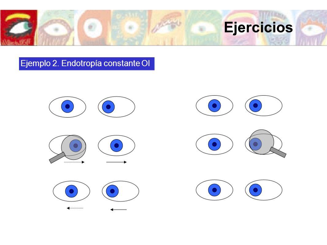 Ejemplo 2. Endotropía constante OI Ejercicios