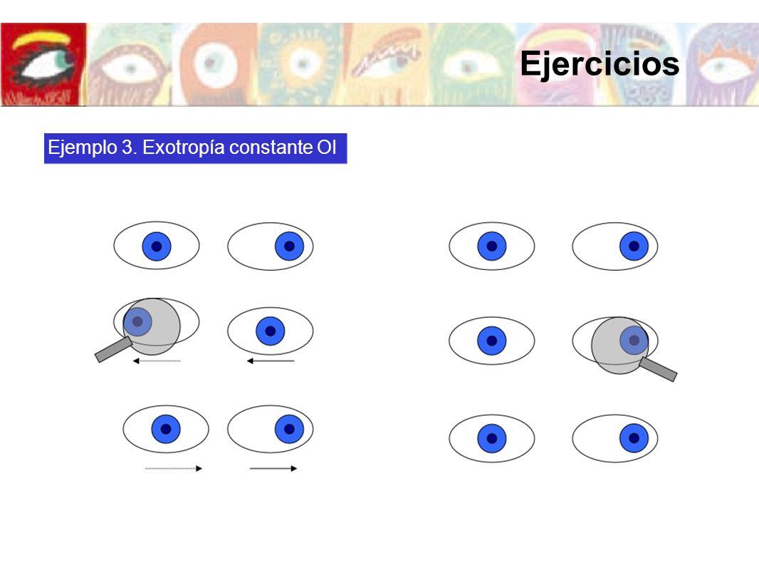 Ejemplo 3. Exotropía constante OI Ejercicios