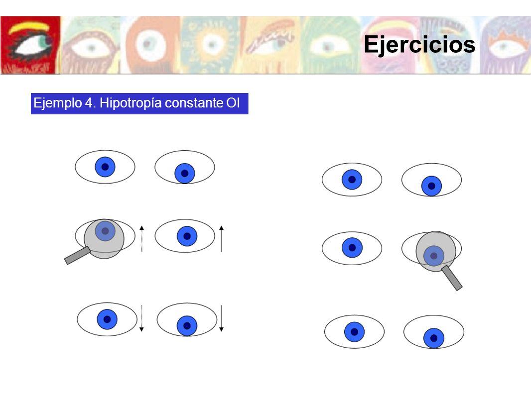Ejemplo 4. Hipotropía constante OI Ejercicios