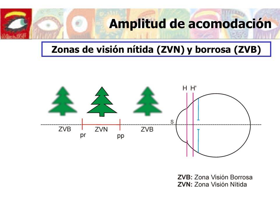 Amplitud de acomodación Zonas de visión nítida (ZVN) y borrosa (ZVB)