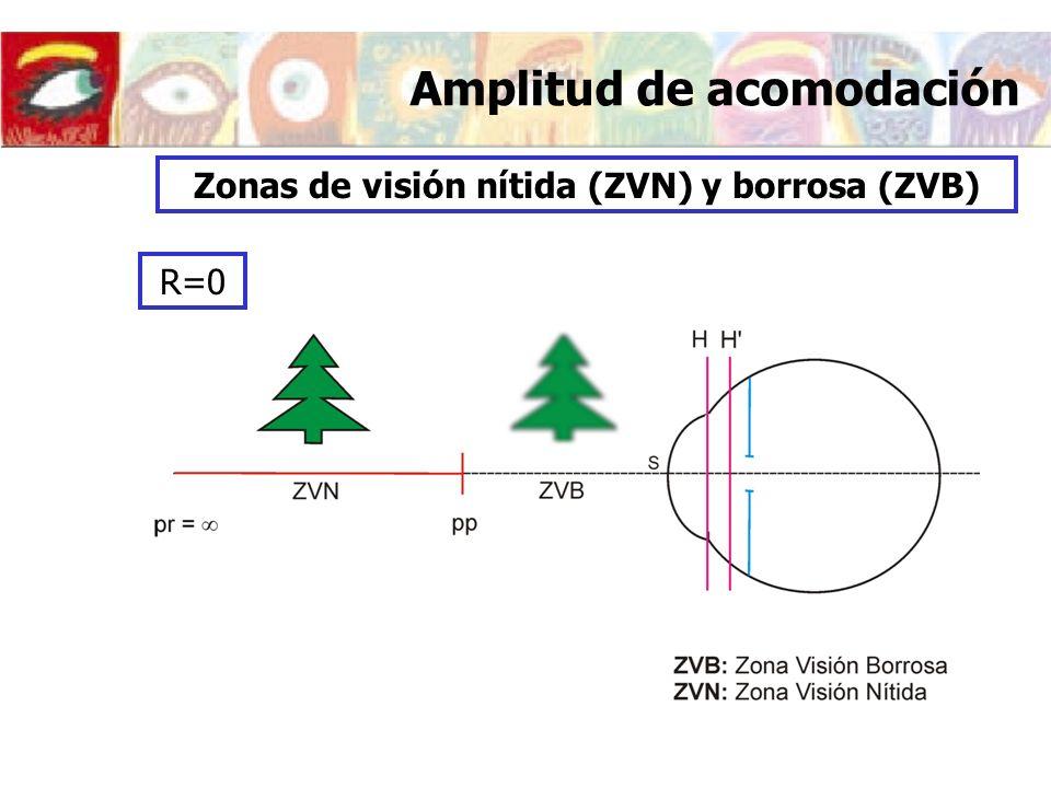 Amplitud de acomodación Zonas de visión nítida (ZVN) y borrosa (ZVB) R=0