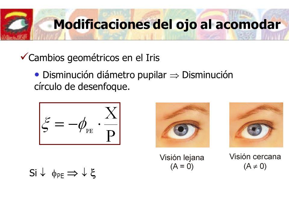 Cambios geométricos en el Iris Disminución diámetro pupilar Disminución círculo de desenfoque.