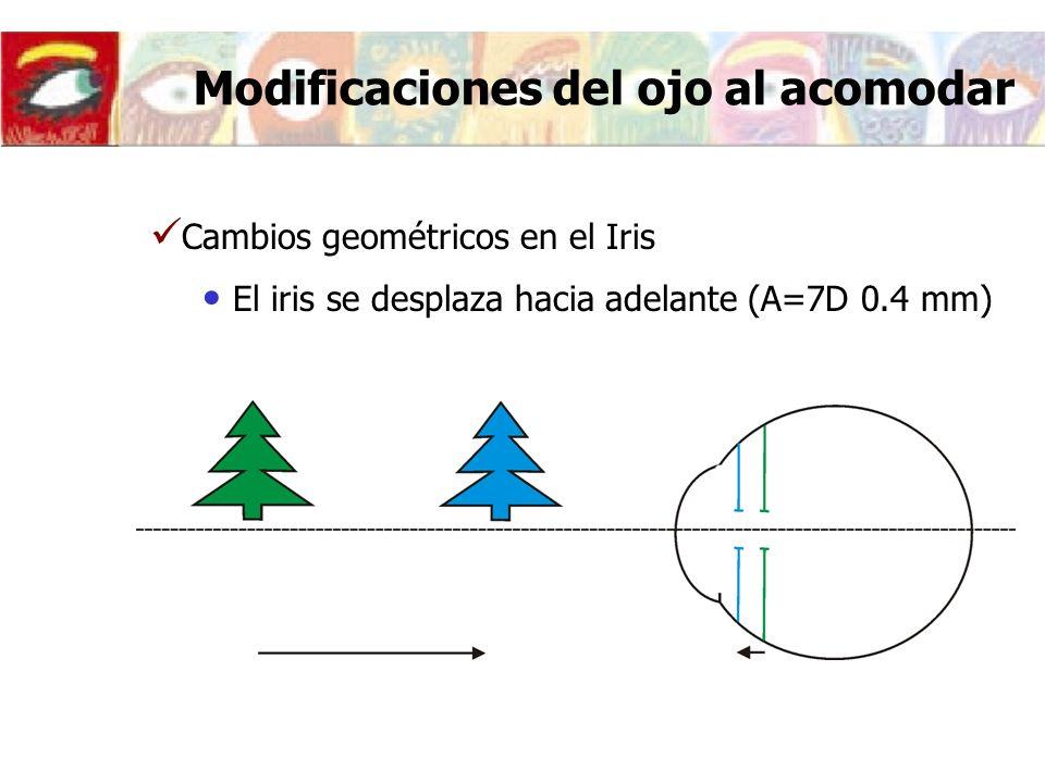 Modificaciones del ojo al acomodar Cambios geométricos en el Iris El iris se desplaza hacia adelante (A=7D 0.4 mm)