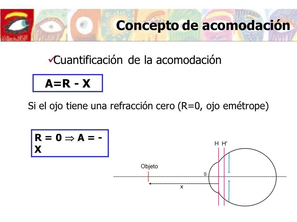 Concepto de acomodación Cuantificación de la acomodación R = 0 A = - X A=R - X Si el ojo tiene una refracción cero (R=0, ojo emétrope)