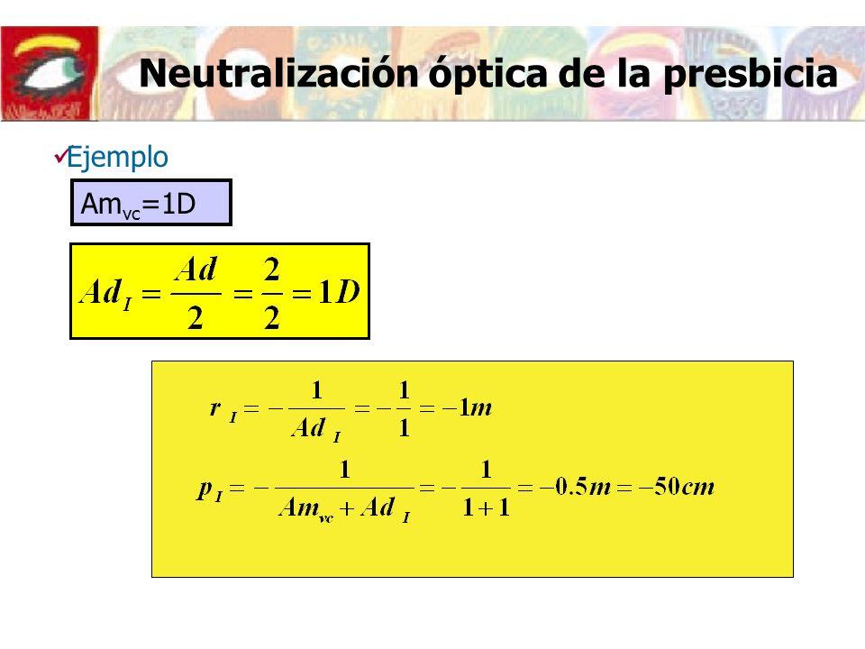 Neutralización óptica de la presbicia Ejemplo Am vc =1D