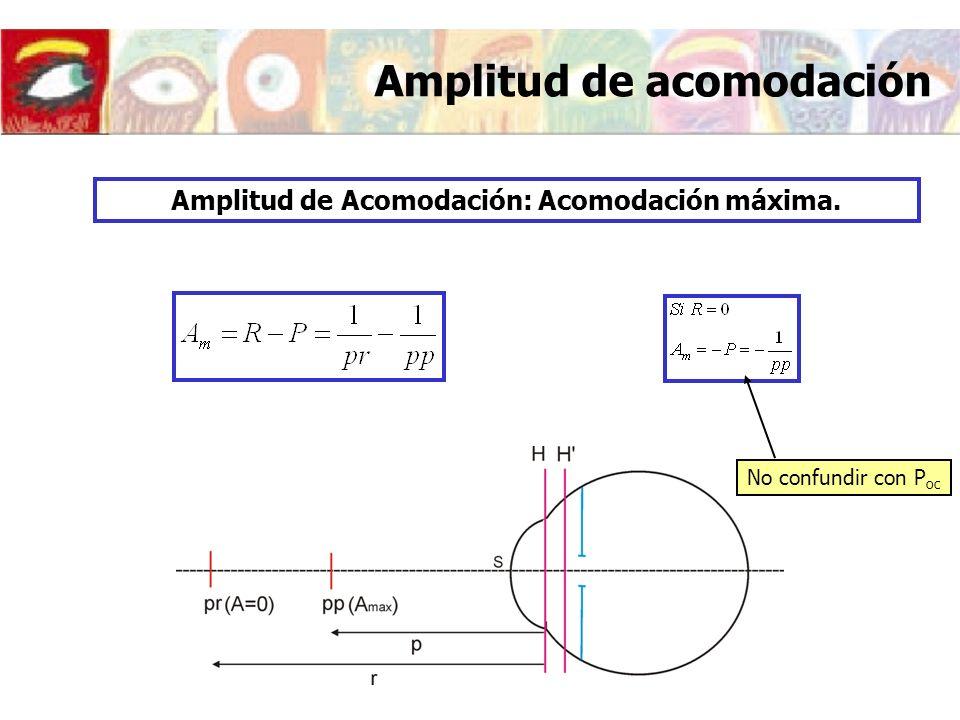 Neutralización óptica de la presbicia Resumen Si d T p se manifiesta la presbicia Para d T =-33 cm Neutralización Para d T =-33 cm LENTE BIFOCAL