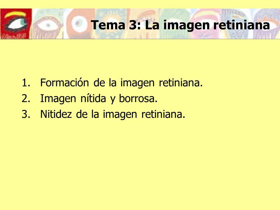 Tema 3: La imagen retiniana 1.Formación de la imagen retiniana. 2.Imagen nítida y borrosa. 3.Nitidez de la imagen retiniana.