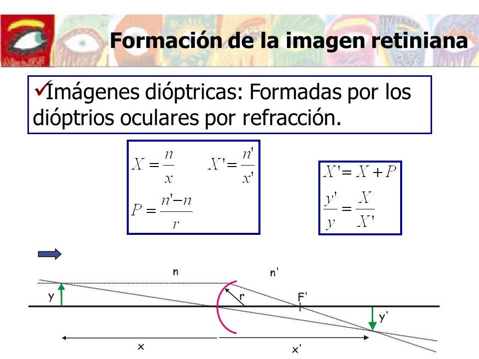 Formación de la imagen retiniana Imágenes dióptricas: Formadas por los dióptrios oculares por refracción.