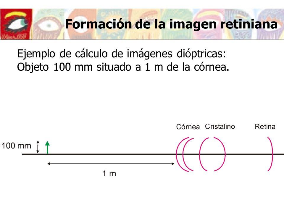 Formación de la imagen retiniana Ejemplo de cálculo de imágenes dióptricas: Objeto 100 mm situado a 1 m de la córnea.