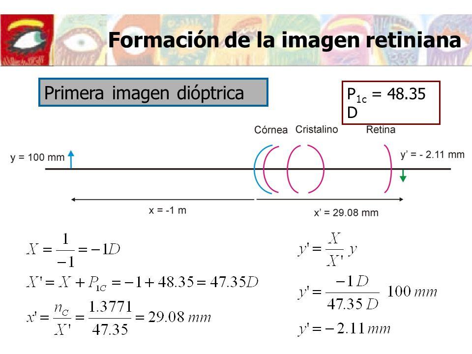 P 1c = 48.35 D Primera imagen dióptrica Formación de la imagen retiniana
