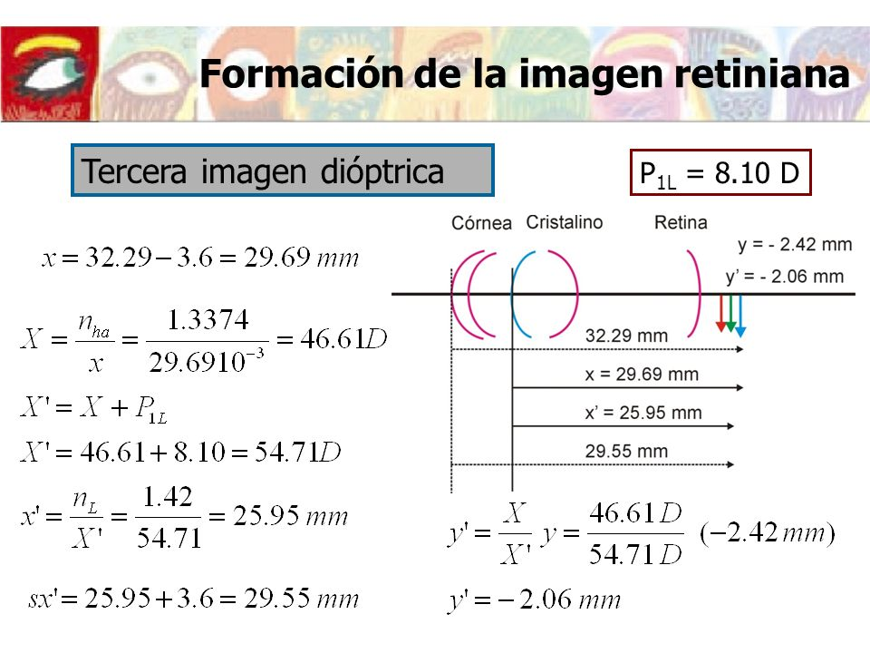 P 1L = 8.10 D Tercera imagen dióptrica Formación de la imagen retiniana
