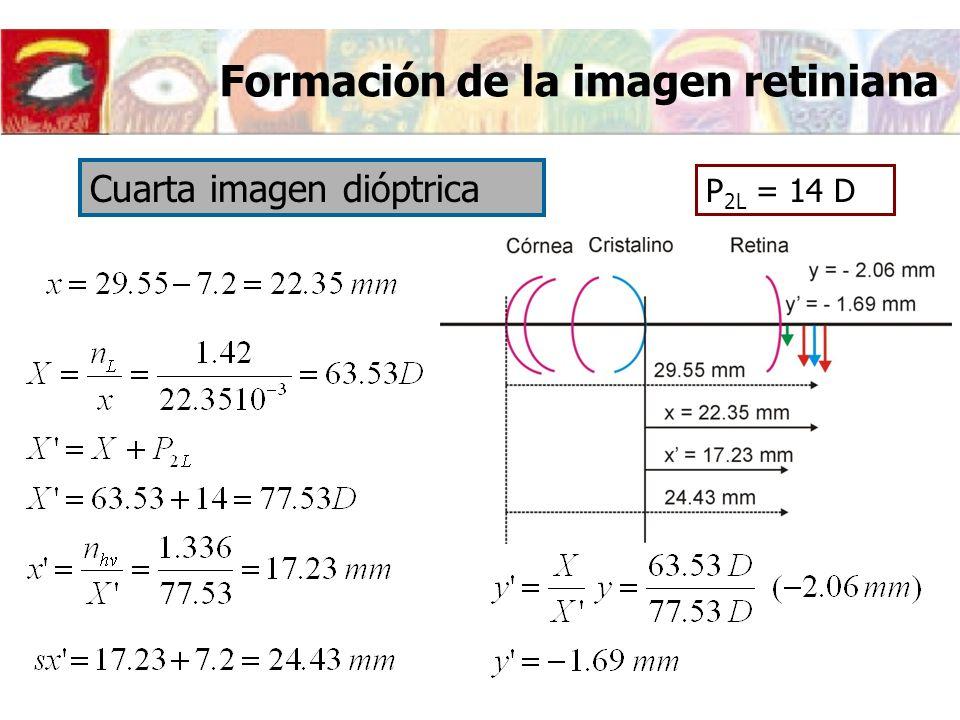 P 2L = 14 D Cuarta imagen dióptrica Formación de la imagen retiniana