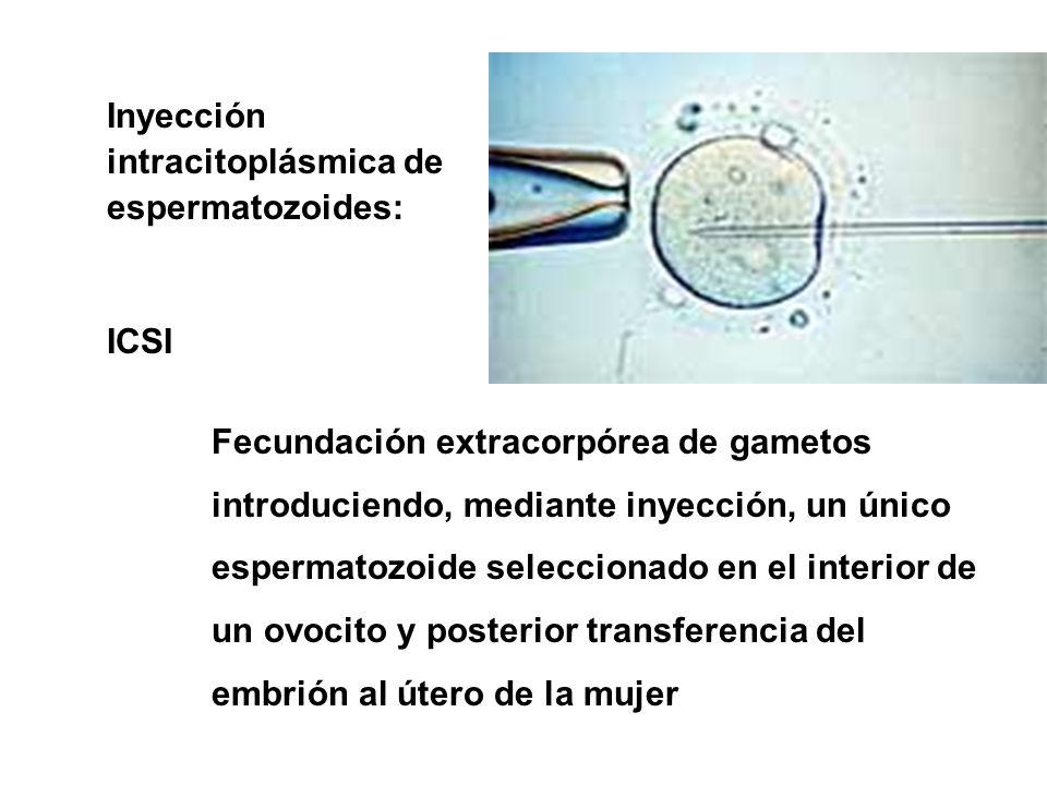 Inyección intracitoplásmica de espermatozoides: ICSI Fecundación extracorpórea de gametos introduciendo, mediante inyección, un único espermatozoide s