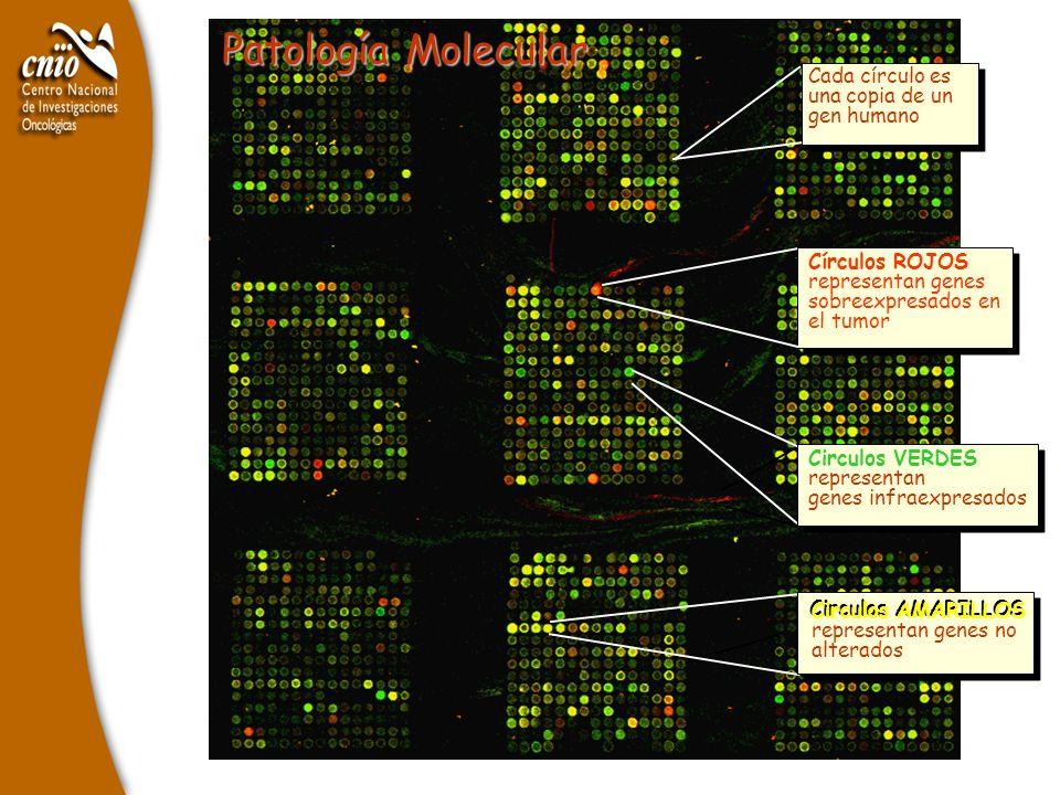 Patología Molecular Cada círculo es una copia de un gen humano Circulos VERDES representan genes infraexpresados Círculos ROJOS representan genes sobr