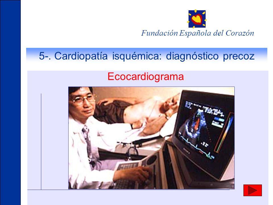 Fundación Española del Corazón 5-. Cardiopatía isquémica: diagnóstico precoz Ecocardiograma