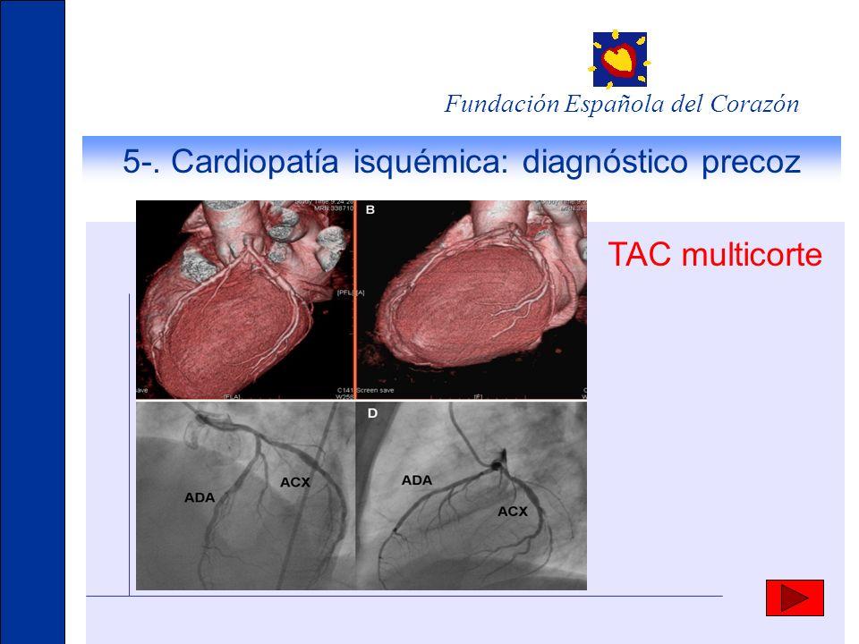 Fundación Española del Corazón 5-. Cardiopatía isquémica: diagnóstico precoz TAC multicorte