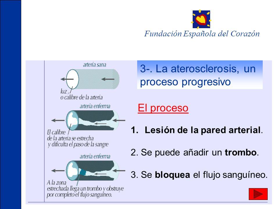 El proceso 1.Lesión de la pared arterial. 2. Se puede añadir un trombo. 3. Se bloquea el flujo sanguíneo. Fundación Española del Corazón 3-. La ateros