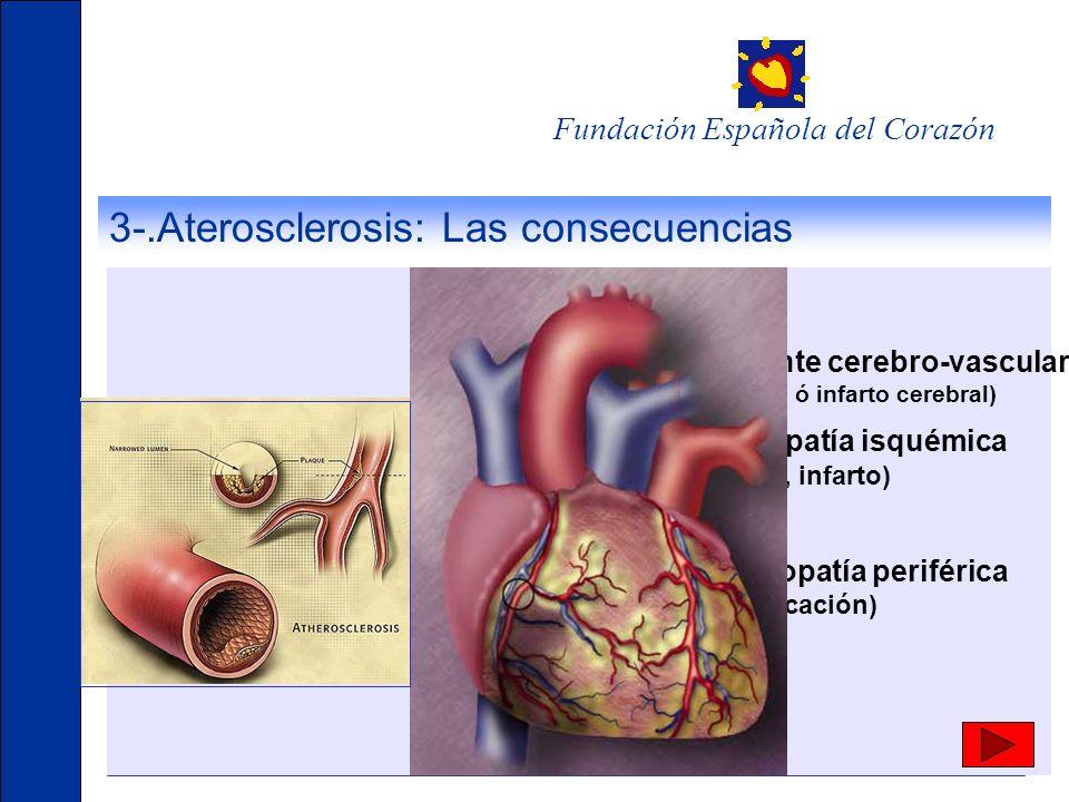 Fundación Española del Corazón 3-.Aterosclerosis: Las consecuencias Accidente cerebro-vascular (isquemia ó infarto cerebral) Cardiopatía isquémica (an
