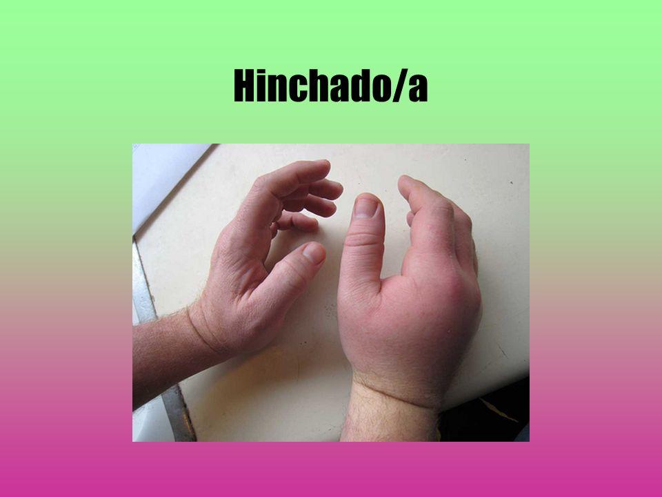 Hinchado/a