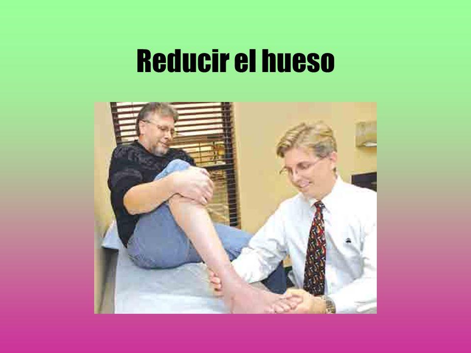 Reducir el hueso