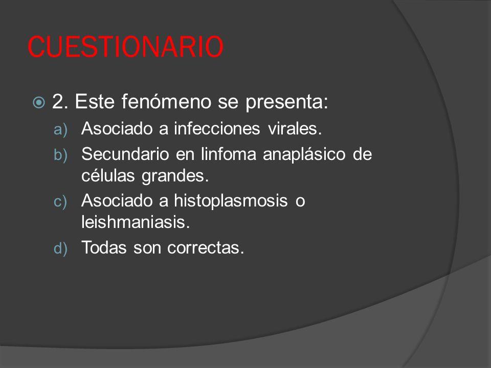 CUESTIONARIO 2. Este fenómeno se presenta: a) Asociado a infecciones virales. b) Secundario en linfoma anaplásico de células grandes. c) Asociado a hi
