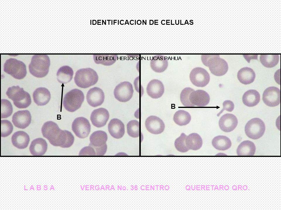 IDENTIFICACION DE CELULAS L A B S A VERGARA No. 36 CENTRO QUERETARO QRO. B B