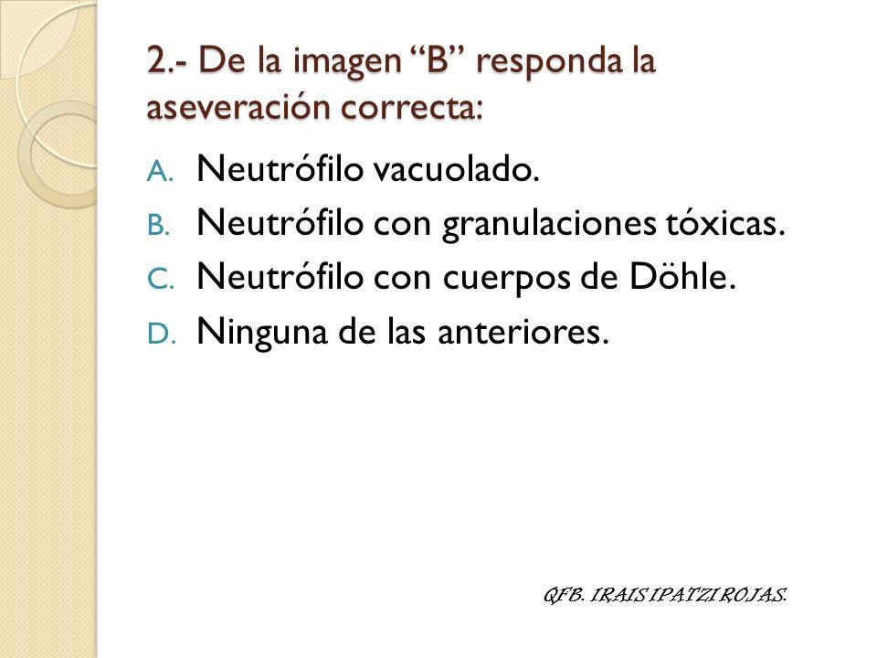 2.- De la imagen B responda la aseveración correcta: A. Neutrófilo vacuolado. B. Neutrófilo con granulaciones tóxicas. C. Neutrófilo con cuerpos de Dö