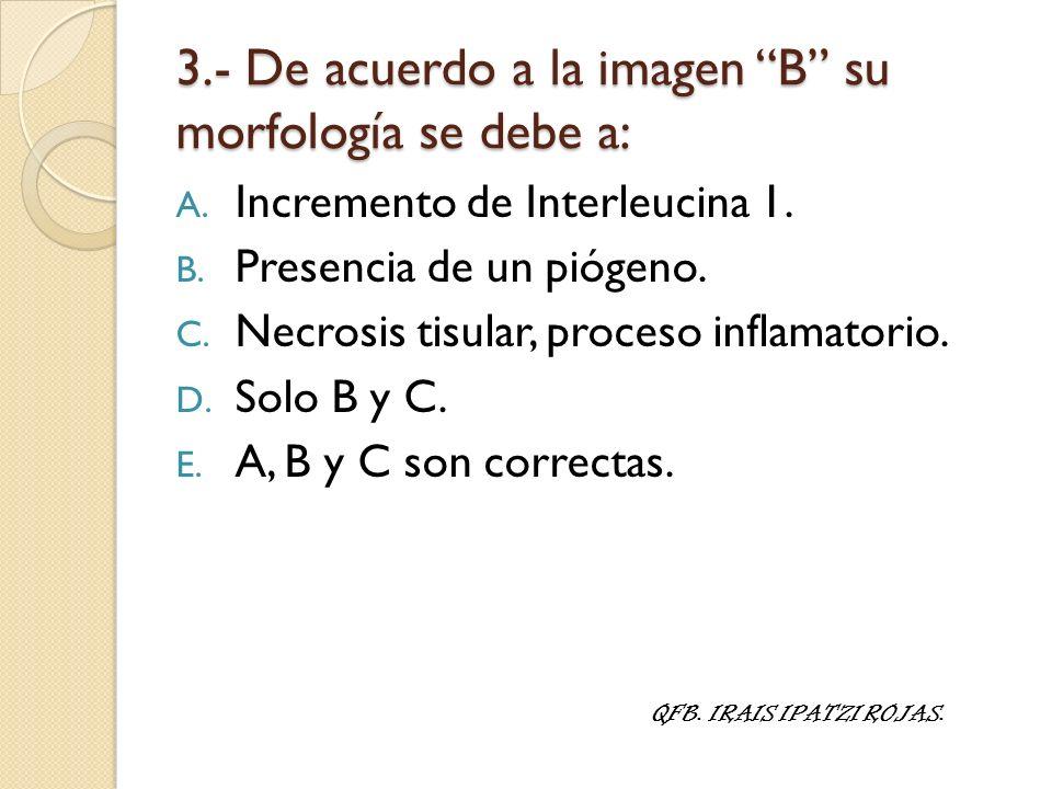 3.- De acuerdo a la imagen B su morfología se debe a: A. Incremento de Interleucina 1. B. Presencia de un piógeno. C. Necrosis tisular, proceso inflam