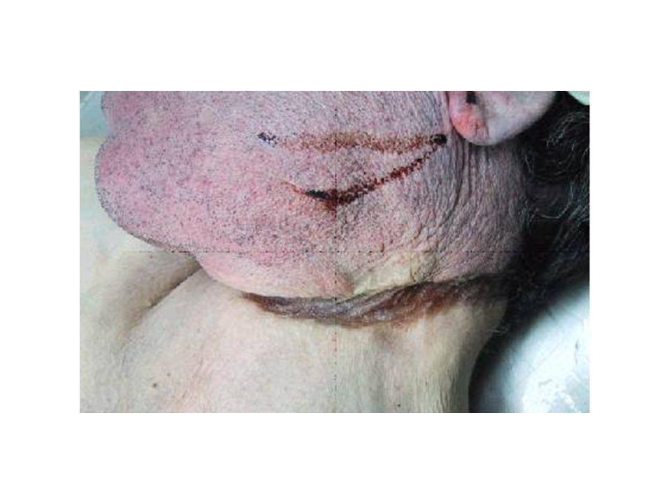 Formas medicolegales de ahorcamiento Suicida ( lo más frecuente) Accidental Disimulación de homicidio