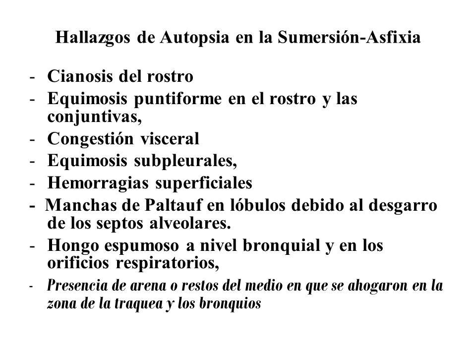 ALTERACIONES HIDROELECTROLITICAS EN LA SUMERSION AGUA DULCE.