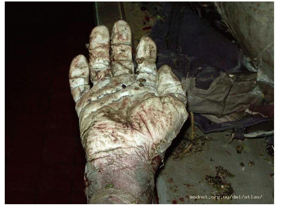 SEPULTACION Lesiones contusas superficiales Lesiones por aplastamiento ( partes blandas y esqueleto) Material particulado en vías aéreas