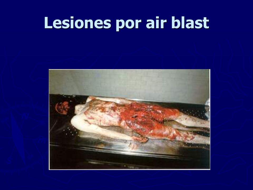 Lesiones por air blast