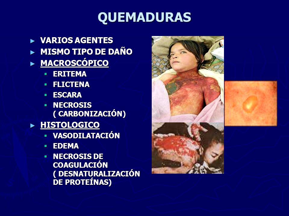 RELACION DE VARIAS LESIONES ENTRE SÍ PATRONES LESIONALES DIFERENTES: - PEATÓN -CONDUCTOR * CON CINTURÓN DE SEGURIDAD * SIN CINTURÓN DE SEGURIDAD -ACOMPAÑANTE ( ASIENTO DELANTERO) -ACOMPAÑANTE ( ASIENTO TRASERO)