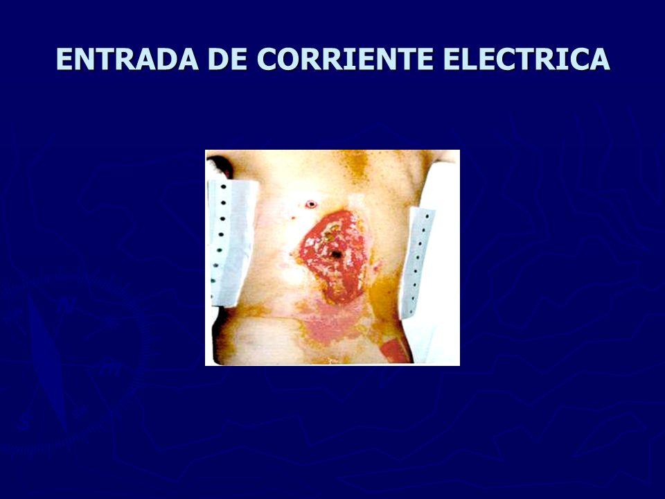 ENTRADA DE CORRIENTE ELECTRICA