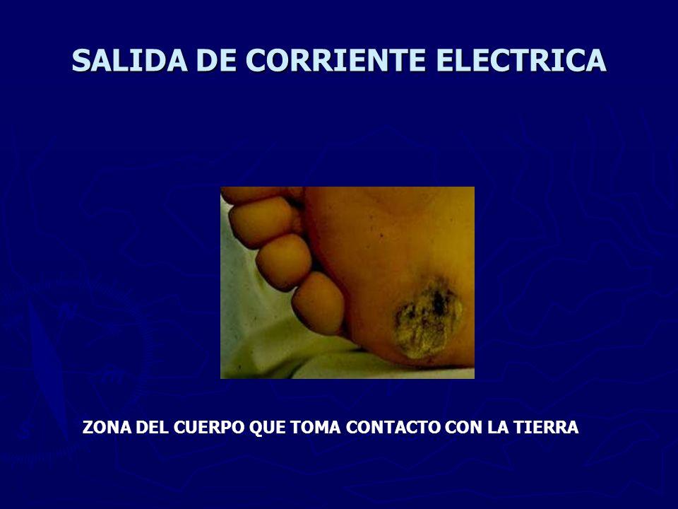 SALIDA DE CORRIENTE ELECTRICA ZONA DEL CUERPO QUE TOMA CONTACTO CON LA TIERRA