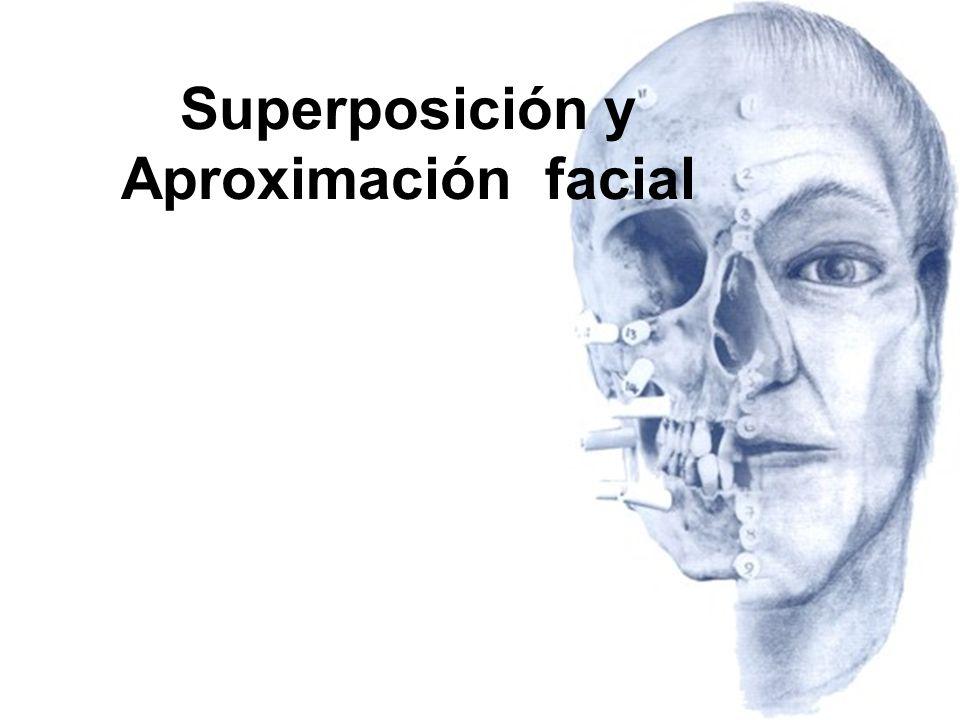 Superposición y Aproximación facial