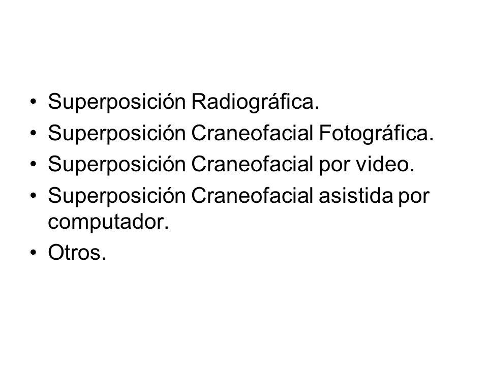 Superposición Radiográfica.Superposición Craneofacial Fotográfica.