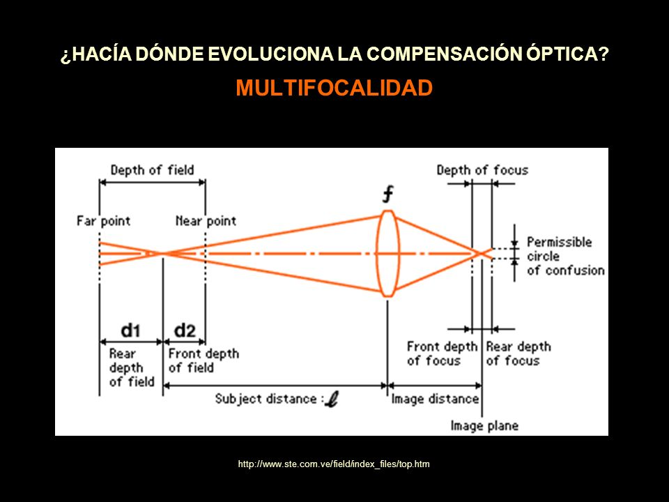 ¿HACÍA DÓNDE EVOLUCIONA LA COMPENSACIÓN ÓPTICA? MULTIFOCALIDAD http://www.ste.com.ve/field/index_files/top.htm