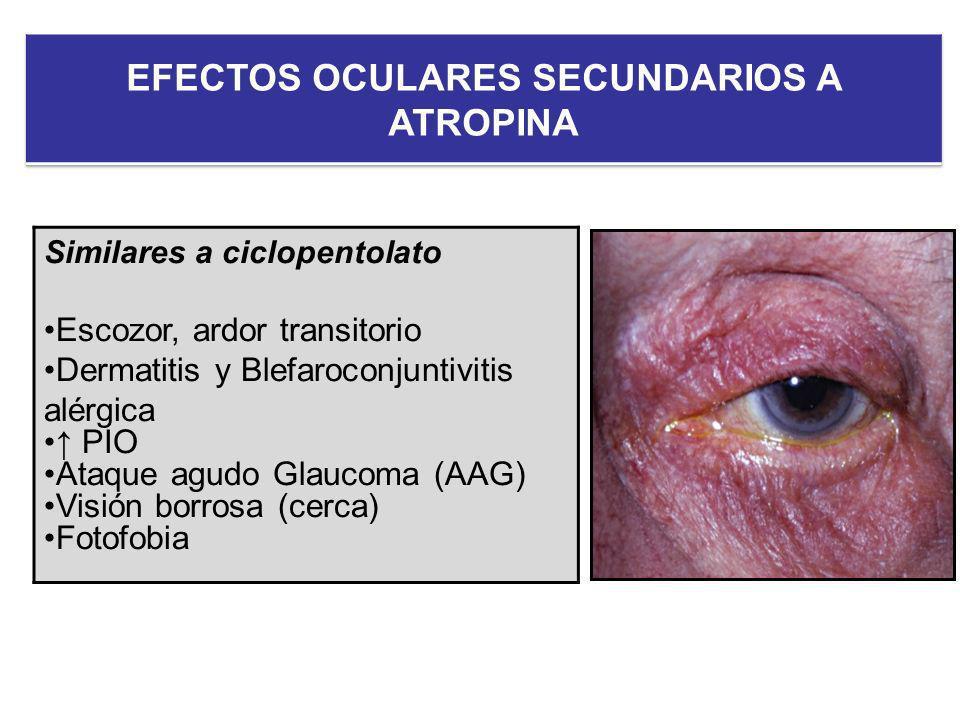 Similares a ciclopentolato Escozor, ardor transitorio Dermatitis y Blefaroconjuntivitis alérgica PIO Ataque agudo Glaucoma (AAG) Visión borrosa (cerca