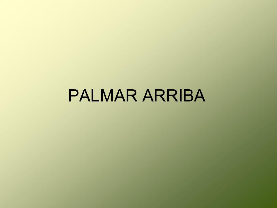 PALMAR ARRIBA