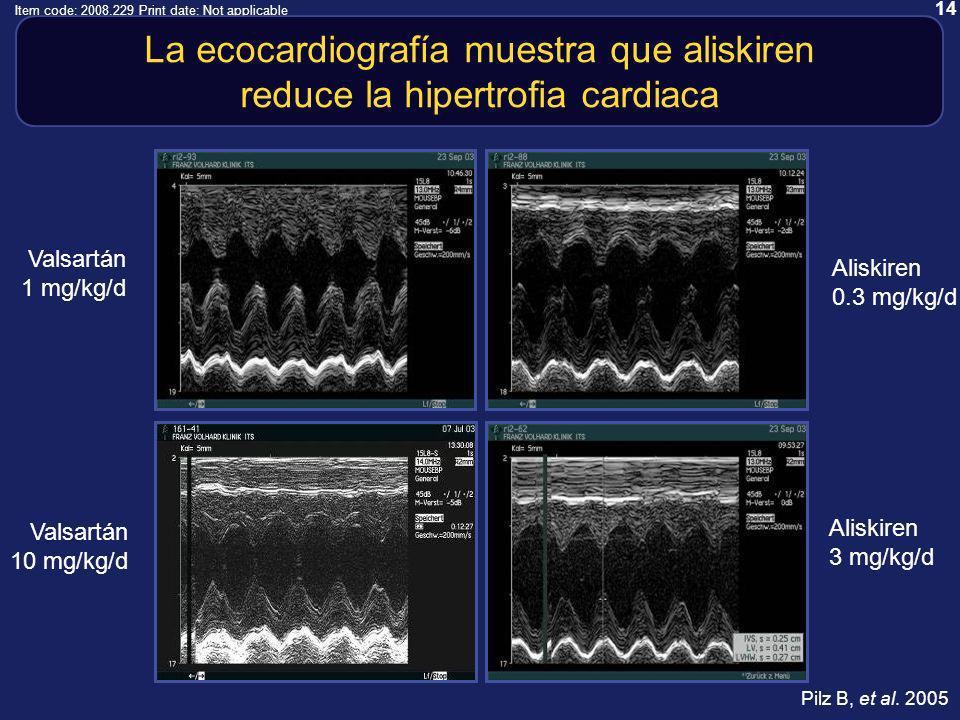 14 Item code: 2008.229 Print date: Not applicable Aliskiren 3 mg/kg/d Aliskiren 0.3 mg/kg/d Valsartán 1 mg/kg/d Valsartán 10 mg/kg/d La ecocardiografía muestra que aliskiren reduce la hipertrofia cardiaca Pilz B, et al.