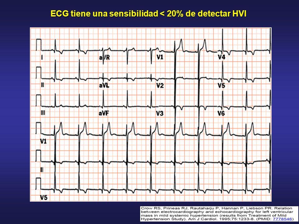 ECG tiene una sensibilidad < 20% de detectar HVI
