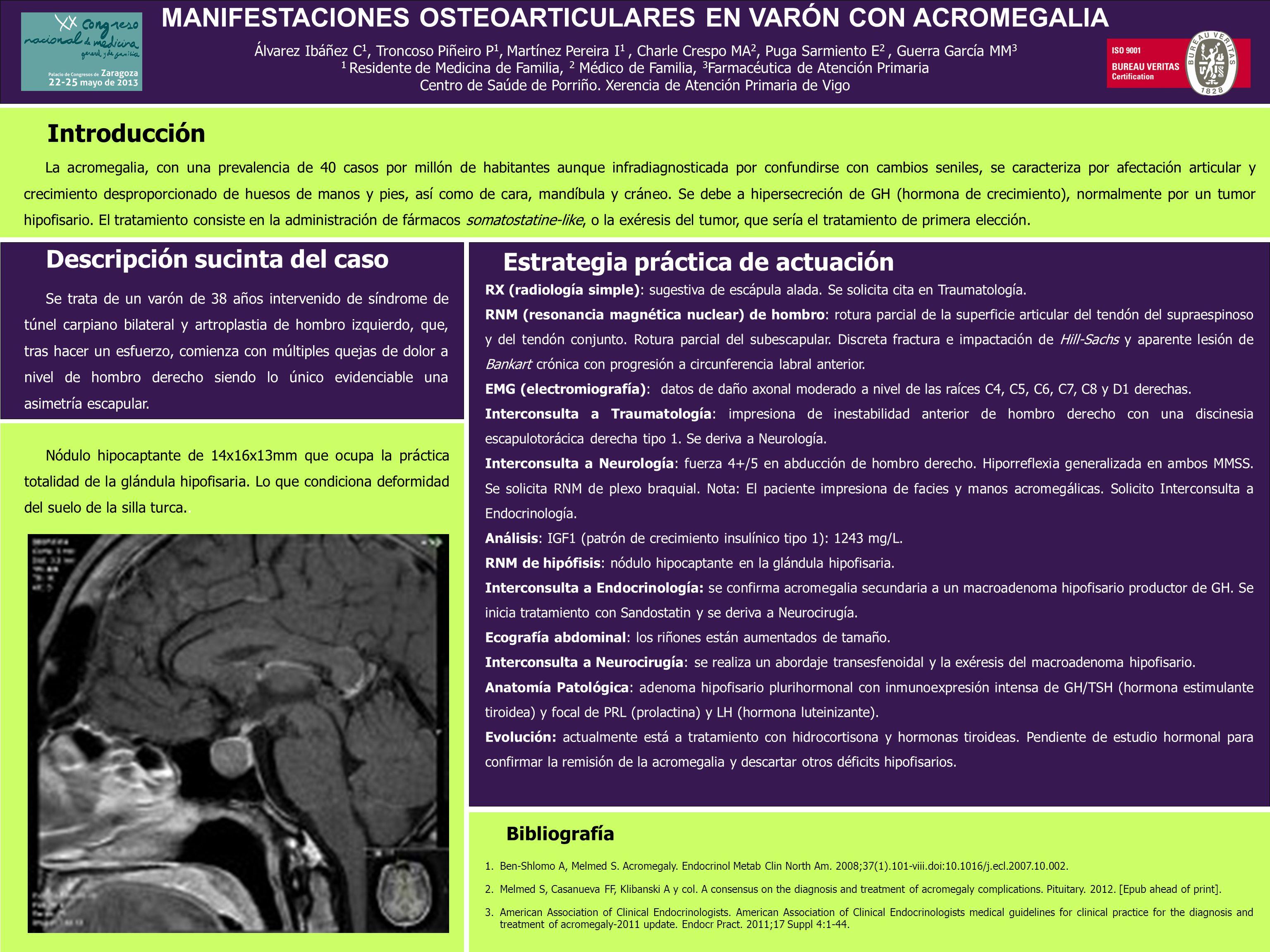 MANIFESTACIONES OSTEOARTICULARES EN VARÓN CON ACROMEGALIA Álvarez Ibáñez C 1, Troncoso Piñeiro P 1, Martínez Pereira I 1, Charle Crespo MA 2, Puga Sar