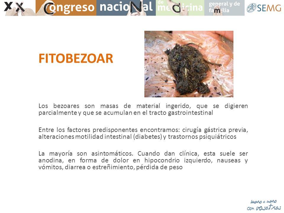 FITOBEZOAR Los bezoares son masas de material ingerido, que se digieren parcialmente y que se acumulan en el tracto gastrointestinal Entre los factore