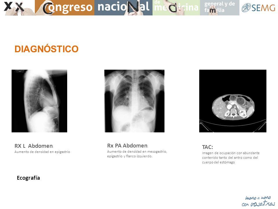 TAC: Imagen de ocupación con abundante contenido tanto del antro como del cuerpo del estómago Rx PA Abdomen : Aumento de densidad en mesogastrio, epig