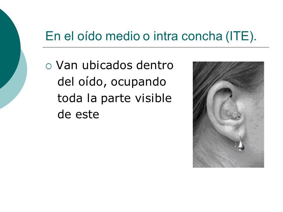 En el oído medio o intra concha (ITE). Van ubicados dentro del oído, ocupando toda la parte visible de este