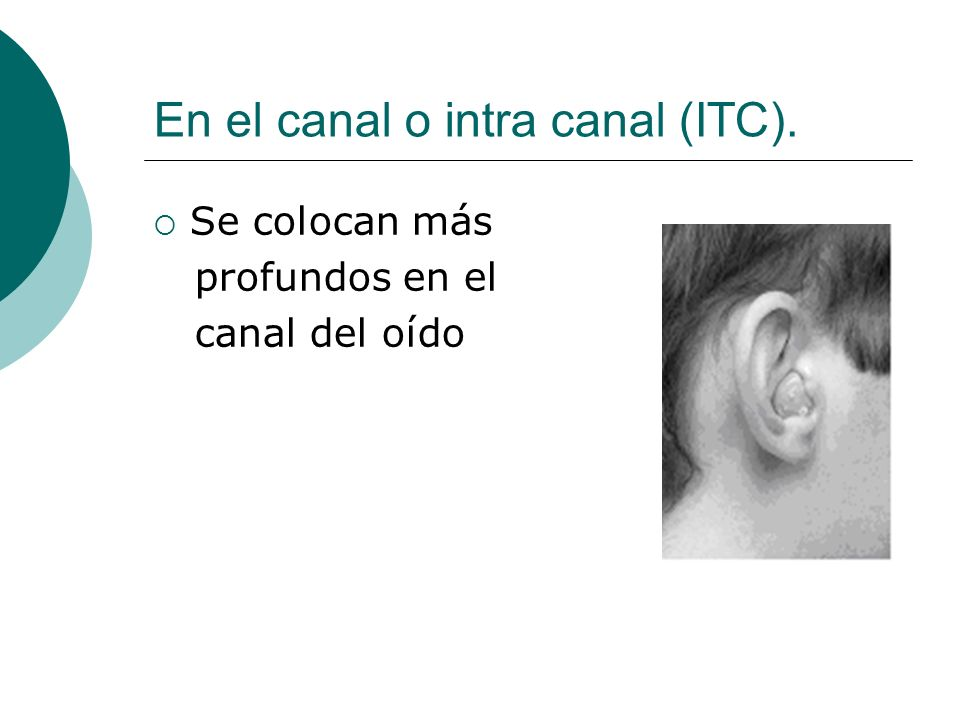 En el canal o intra canal (ITC). Se colocan más profundos en el canal del oído