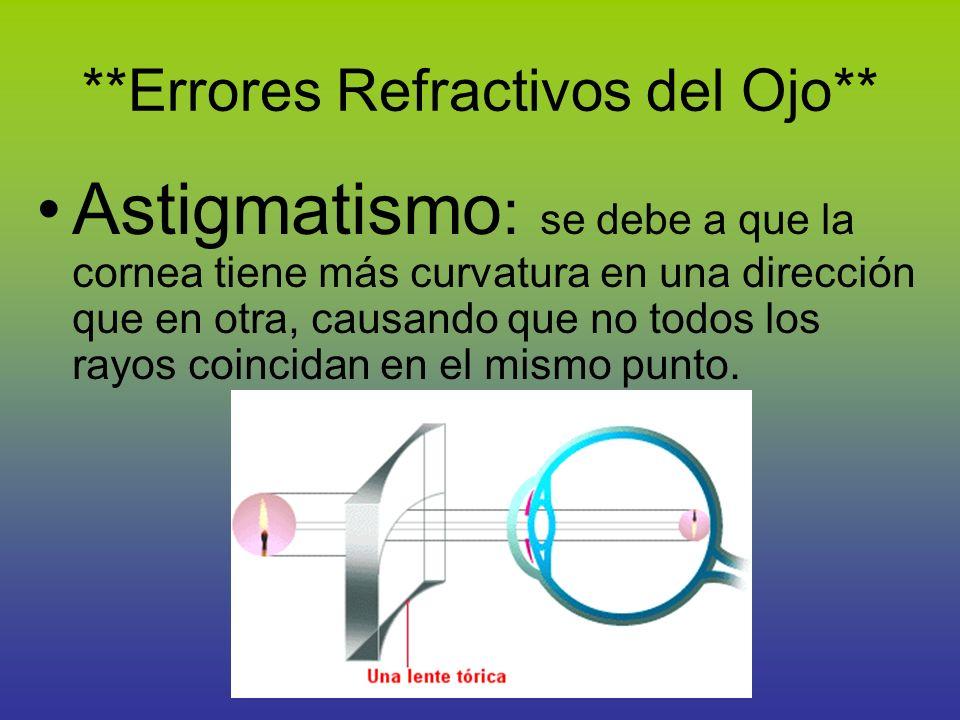 **Errores Refractivos del Ojo** Astigmatismo : se debe a que la cornea tiene más curvatura en una dirección que en otra, causando que no todos los ray