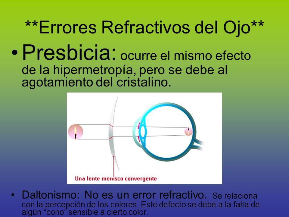 **Errores Refractivos del Ojo** Presbicia: ocurre el mismo efecto de la hipermetropía, pero se debe al agotamiento del cristalino. Daltonismo: No es u