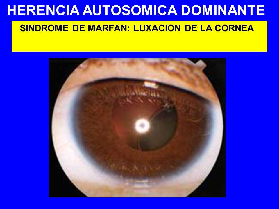 HERENCIA AUTOSOMICA DOMINANTE SINDROME DE MARFAN: LUXACION DE LA CORNEA